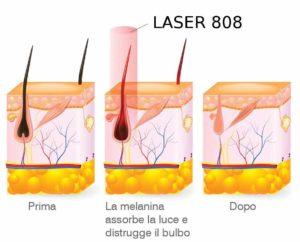 Laser-Diodo-808-Epilazione